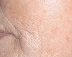 cura invecchiamento della pelle