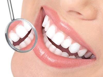 cure dentali Varese