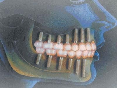 impianto protesi dentarie Varese