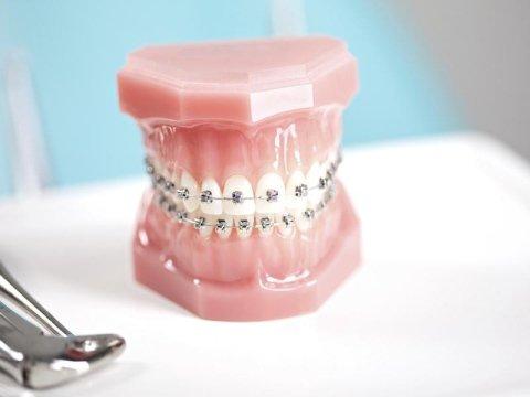 protesi dentarie varese