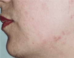 cura acne varese