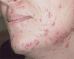 trattamento acne varese