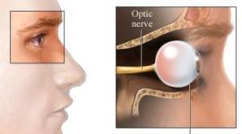 Malattie Oculari