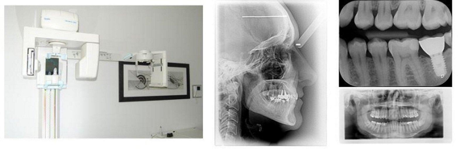 delle radiografie e un macchinario