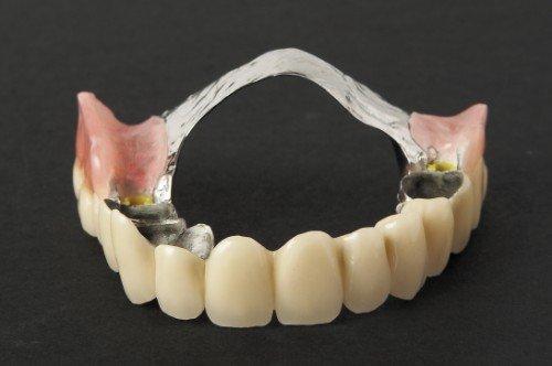 denti con carie