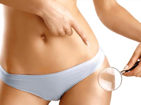 trattamento anti cellulite