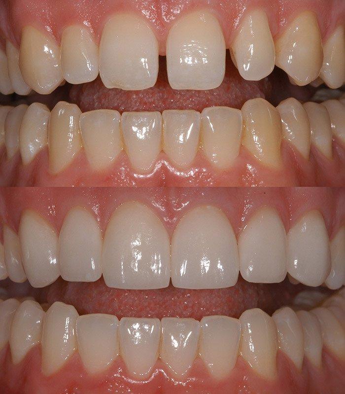 Lady repairing dummy teeth