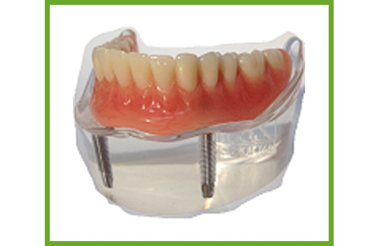 Maroochy Denture Clinic implant