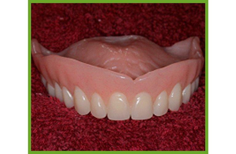 Maroochy Denture Clinic fit