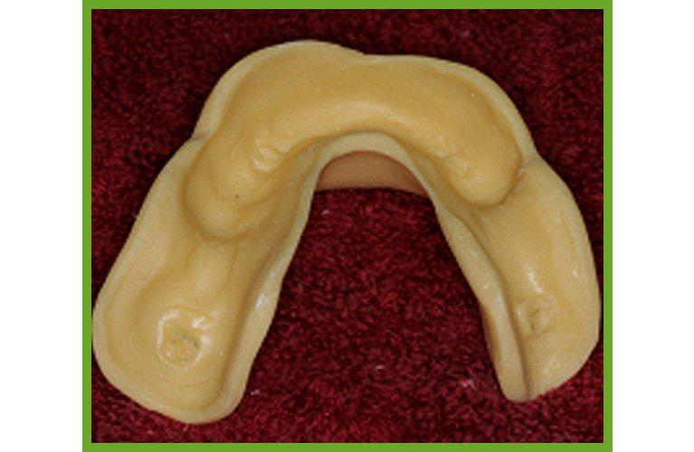 Maroochy Denture Clinic special tray