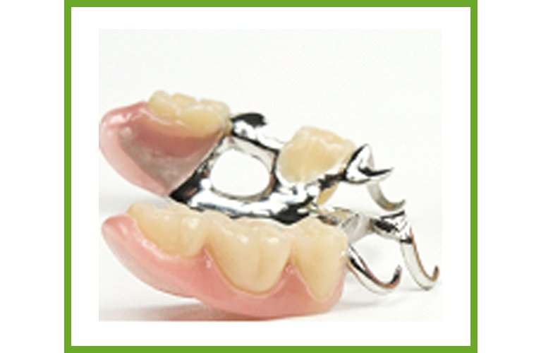 Maroochy Denture Clinic chrome denture