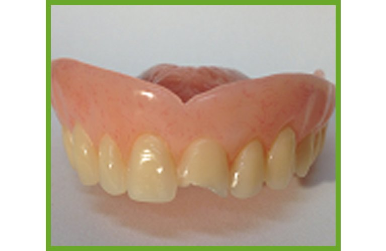 Maroochy Denture Clinic replace tooth or wire