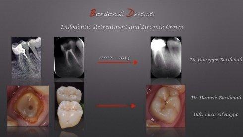 granuloma apicale. endodonzia. corona zirconia ceramica