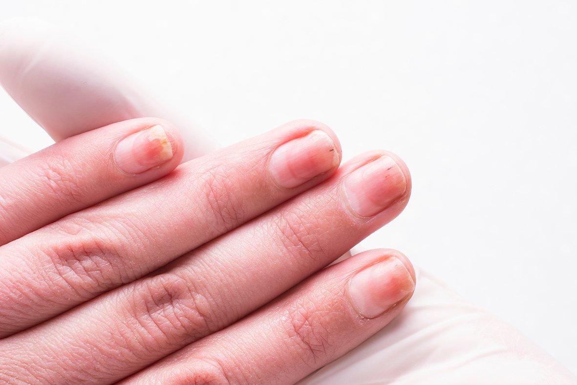 Remediile naturale pentru onicomicoză