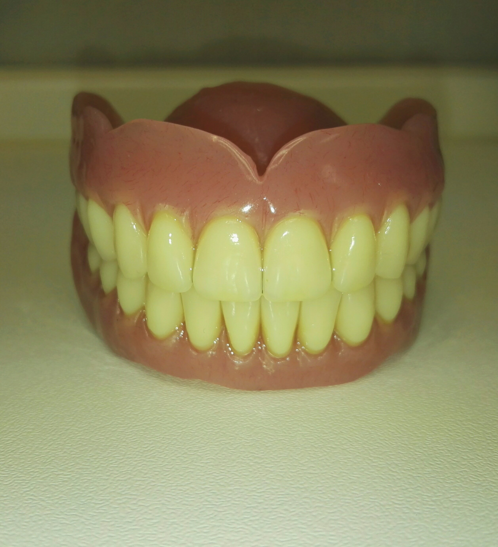 modello protesi dentaria
