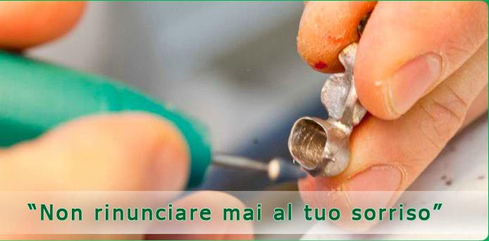 riparazione protesi dentarie - riparazioni protesi a Roma