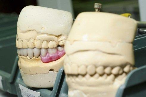 calco denti