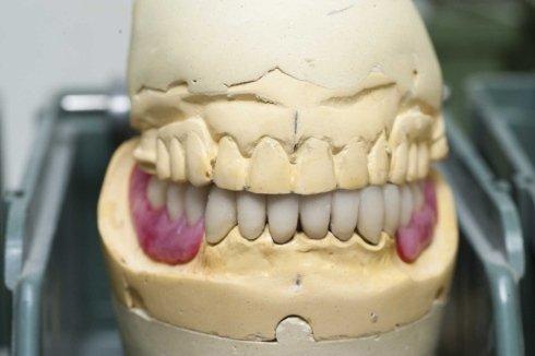 prova protesi su calco di gesso