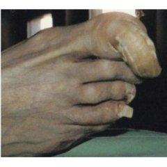 trattamento Onicogrifosi