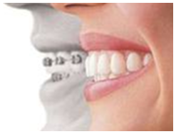Cure dentali estetiche