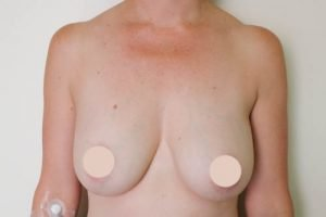 breast implant revision case study