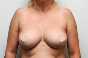 breast lift case studies