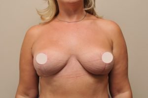 breast lift case study