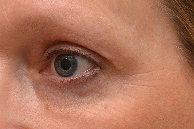 blepharoplasty case study