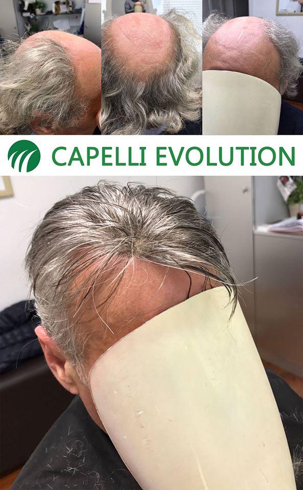 Impianti capillari