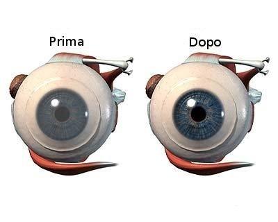 trapianti della cornea