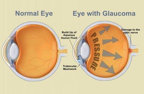 cura glaucoma secondario