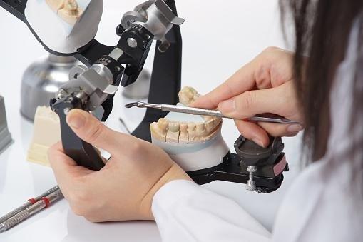 realizzazione protesi denti