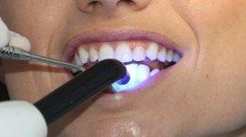 Sbiancamento dentale Firenze
