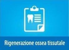 Rigenerazione Ossea Tissutale