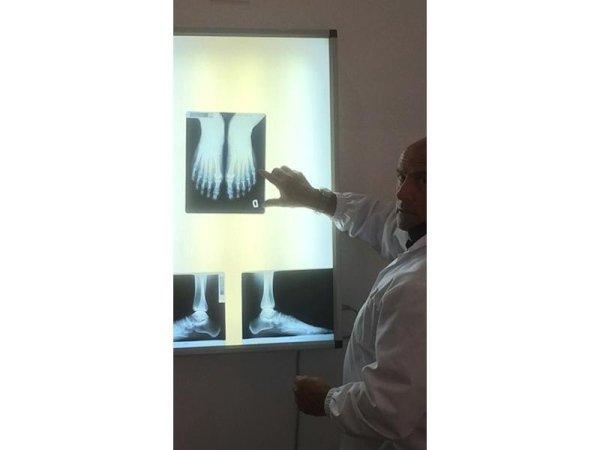analisi ortopedica