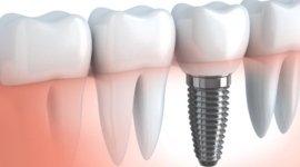 impianti dentari fissi, protesi mobili, protesi fisse
