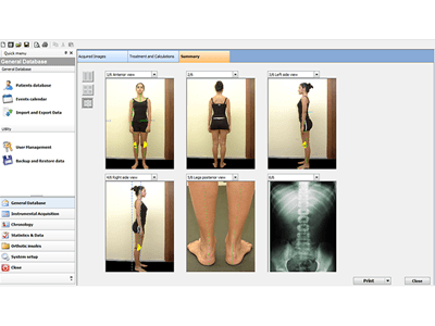 Analisi baropodometrica