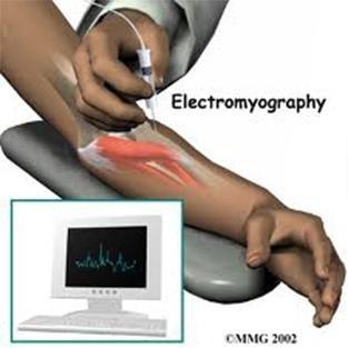 Elettromiografia
