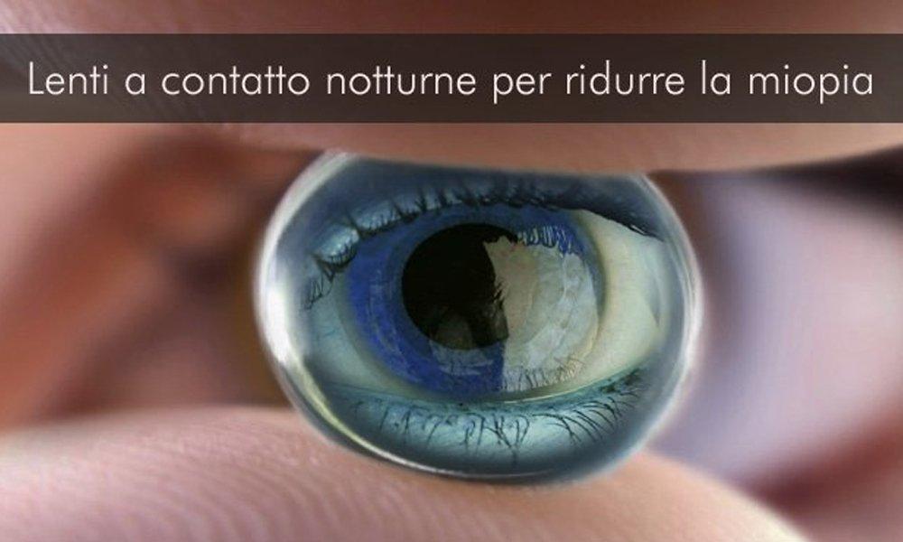 Lenti a contatto notturne per ridurre la miopia a Mogliano