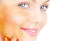 terapia anticellulite, verruche, cheratosi attiniche