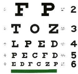 Patologie della vista