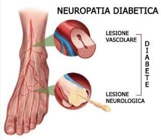 NEUROPATIA DIABETIC