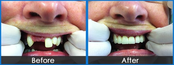 montmorency dental group broken tooth treatment before and after