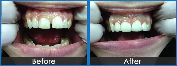 montmorency dental group tooth gap filled before and after