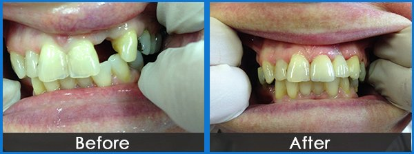 montmorency dental group tooth shape treatment before and after
