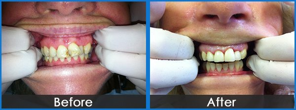 montmorency dental group overlapped tooth treatment before and after