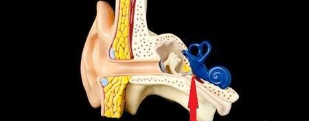 ostosclerosi