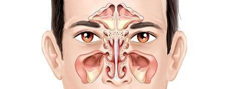 infezioni orl