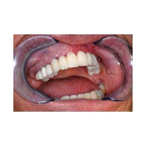 dispositivi medici ortodontici su misura