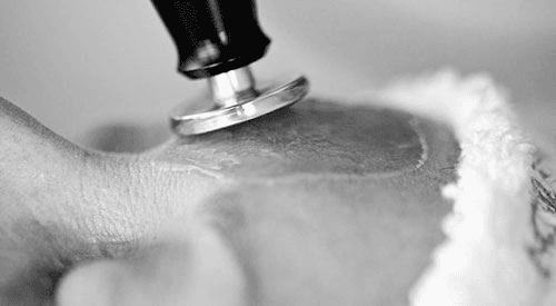 Precision Treatment